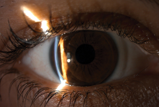 Fig. 1. This patient is wearing a GP lens fit on top of a silicone hydrogel lens due to daily RGP lens awareness.