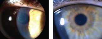 Through a hyperprolate corneal shape and epithelial remodeling, Raindrop Near Vision Inlays, shown here, create a multifocal cornea. Photos: Vance Thompson, MD