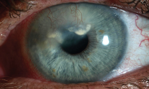 This patient has heavy vascularization and lipid deposition secondary to herpetic keratitis.