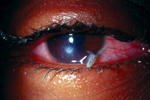 This extended wear patient developed culture-proven Pseudomonas keratitis that has mucopurulent discharge. Photo: Joseph Sowka, OD, and Alan G. Kabat, OD