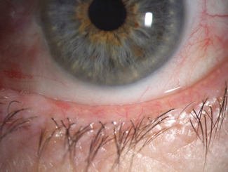 Fig. 2. Signs of blepharitis and low lacrimal lake noted prior to cataract surgery.
