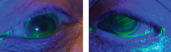 Fig. 2. These images show the RGP lenses on the right and left eyes. You will note the good centration with light apical touch.