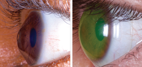 These images show a keratoconus patient before, at left, and after being fit with a medically necessary scleral lens. Photos: Tom Arnold, OD
