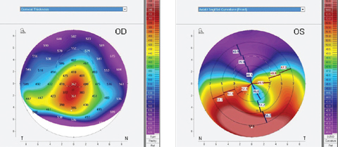 Topography can be instrumental when fitting medically necessary contact lenses for patients with conditions such as pellucid marginal degeneration. Photos: Tom Arnold, OD