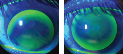An inferiorly decentered multifocal GP with excessive movement, at left, will cause blurred, fluctuating vision and discomfort. To improve fit and vision, steepen the base curve and increase the overall diameter, at right. Photos: Thuy-Lan Nguyen, OD