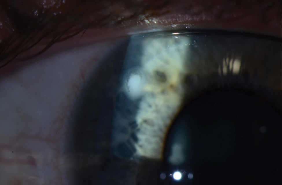 Despite the reduced lens care needs of daily disposables, wearers are still at risk for microbial keratitis, as seen here. Photo: Jeffrey Sonsino, OD, and Shachar Tauber, MD