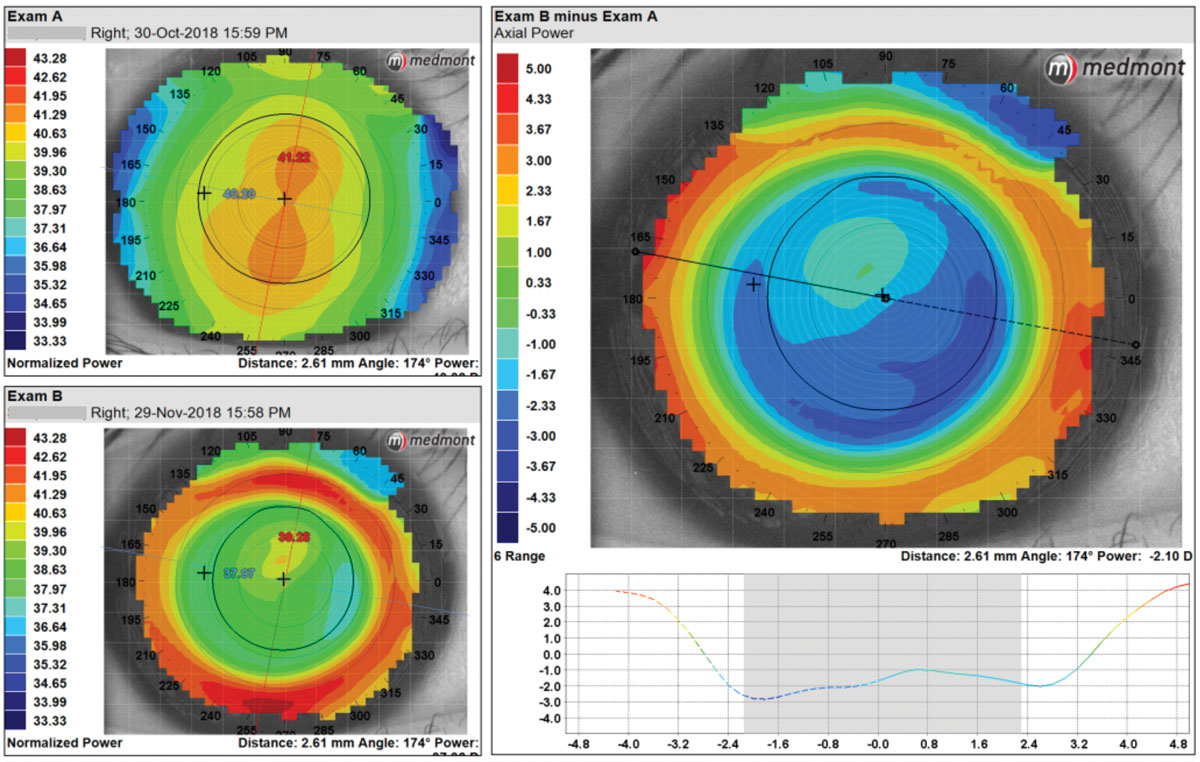 "Centrally, this patient has an irregular treatment zone with an optical zone that is too large and would not provide adequate ""plus in the pupil."" The optical zone parameters were switched from 6.0mm to 5.4mm for a better fit."