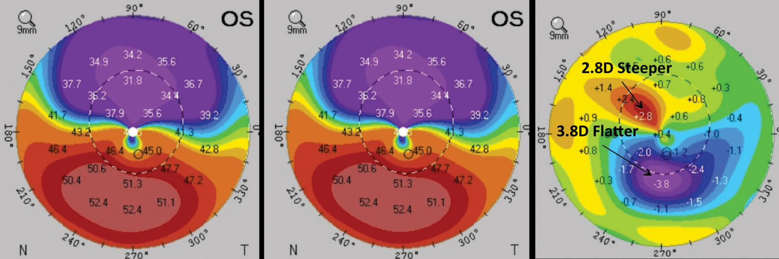 This patient underwent epi-on CXL. Comparing the pre-op (left) and post-op (middle) corneal thickness reveals significant changes in corneal parameters in the difference map (right). Images: William Trattler, MD; International Keratoconus Academy