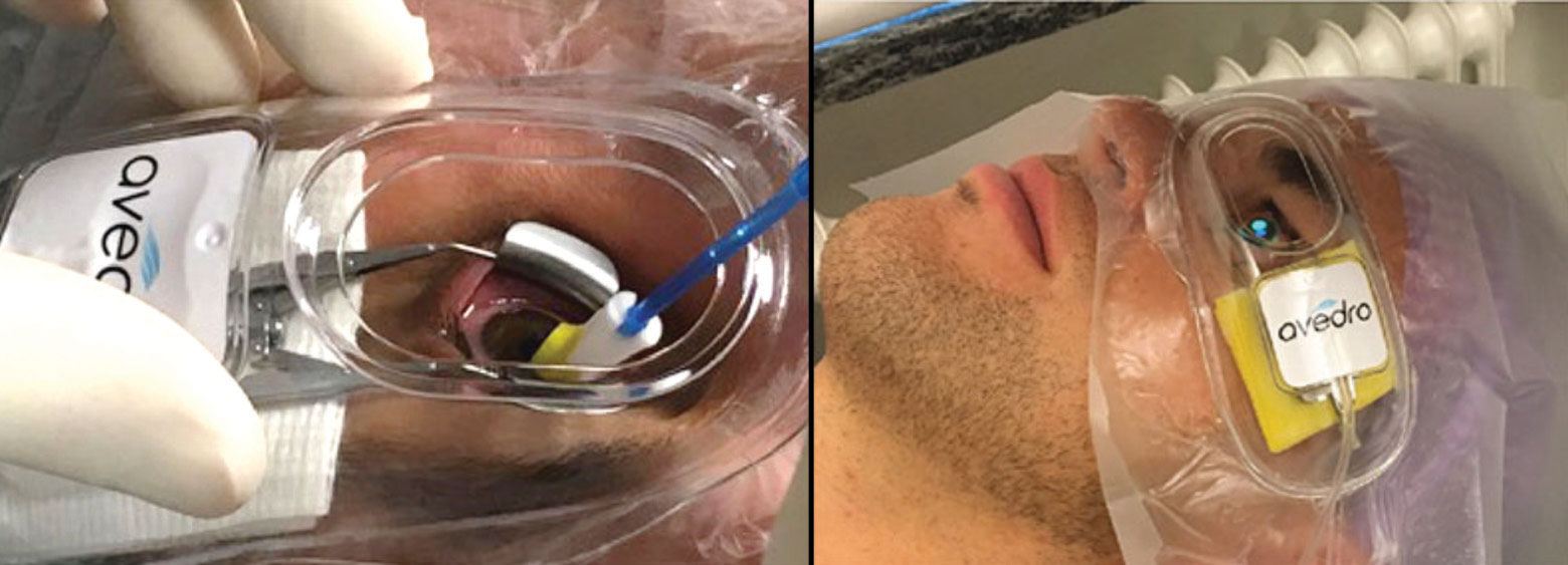 Epi-on/accelerated/oxygen-enhanced CXL remains investigational, but it might be common in the future. Photos: Avedro, International Keratoconus Academy