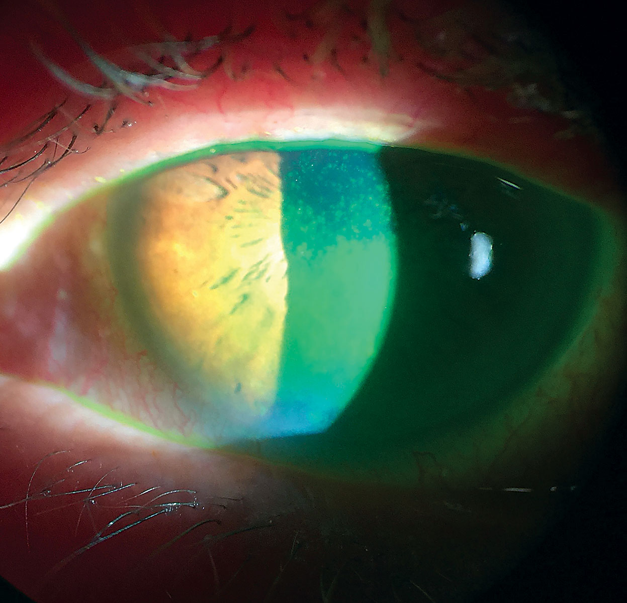 A cytokine coating for soft lenses could provide sustained dry eye treatment.