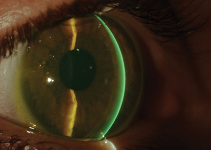 Scleral lenses can make a world of difference once a patient is educated thoroughly.