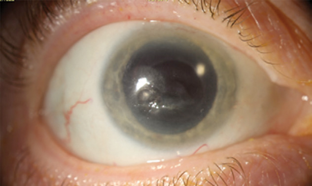 A scarred but fully healed cornea following recurrent NK.
