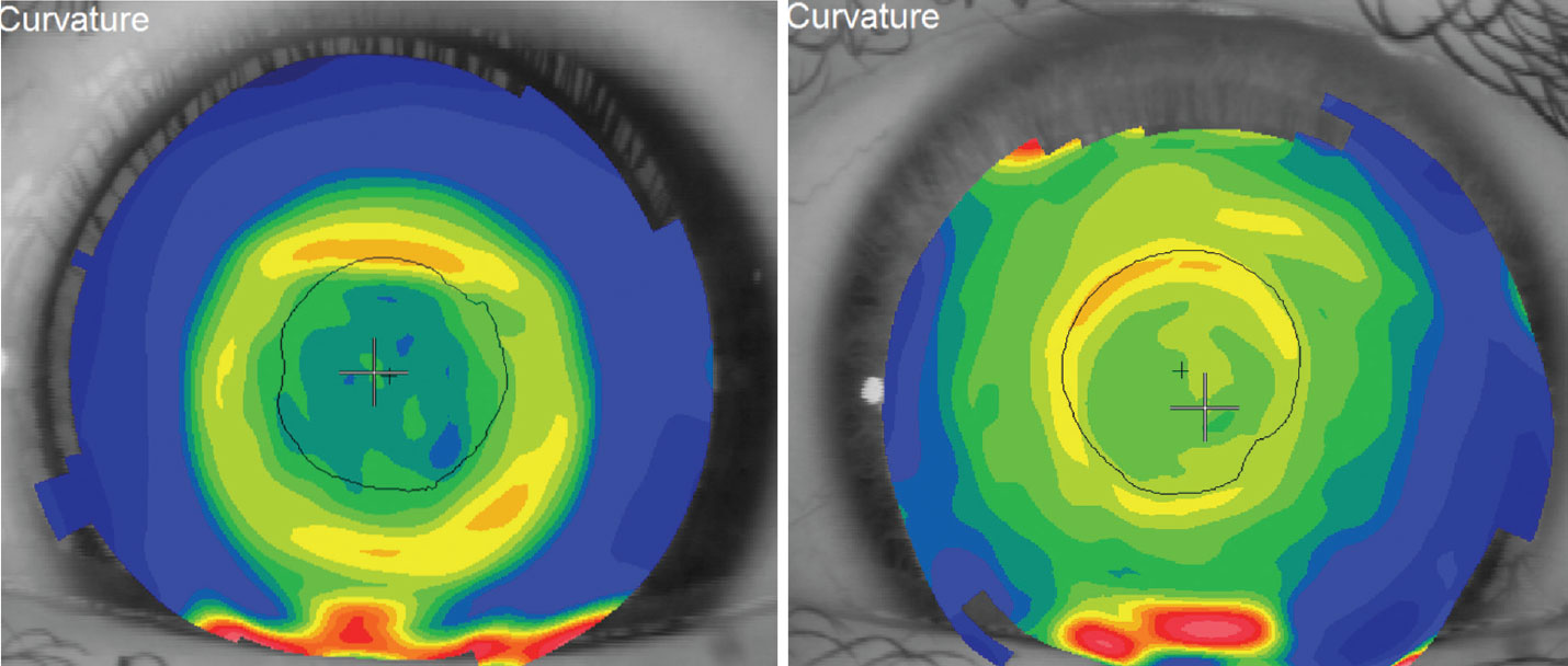 Topography of a successful orthokeratology patient's cornea (left). Topography over the surface of a distance-centered multifocal contact lens (right).