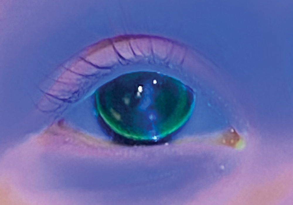 Fig. 1. Note the lack of NaFL centrally in this flat-fitting diagnostic lens.