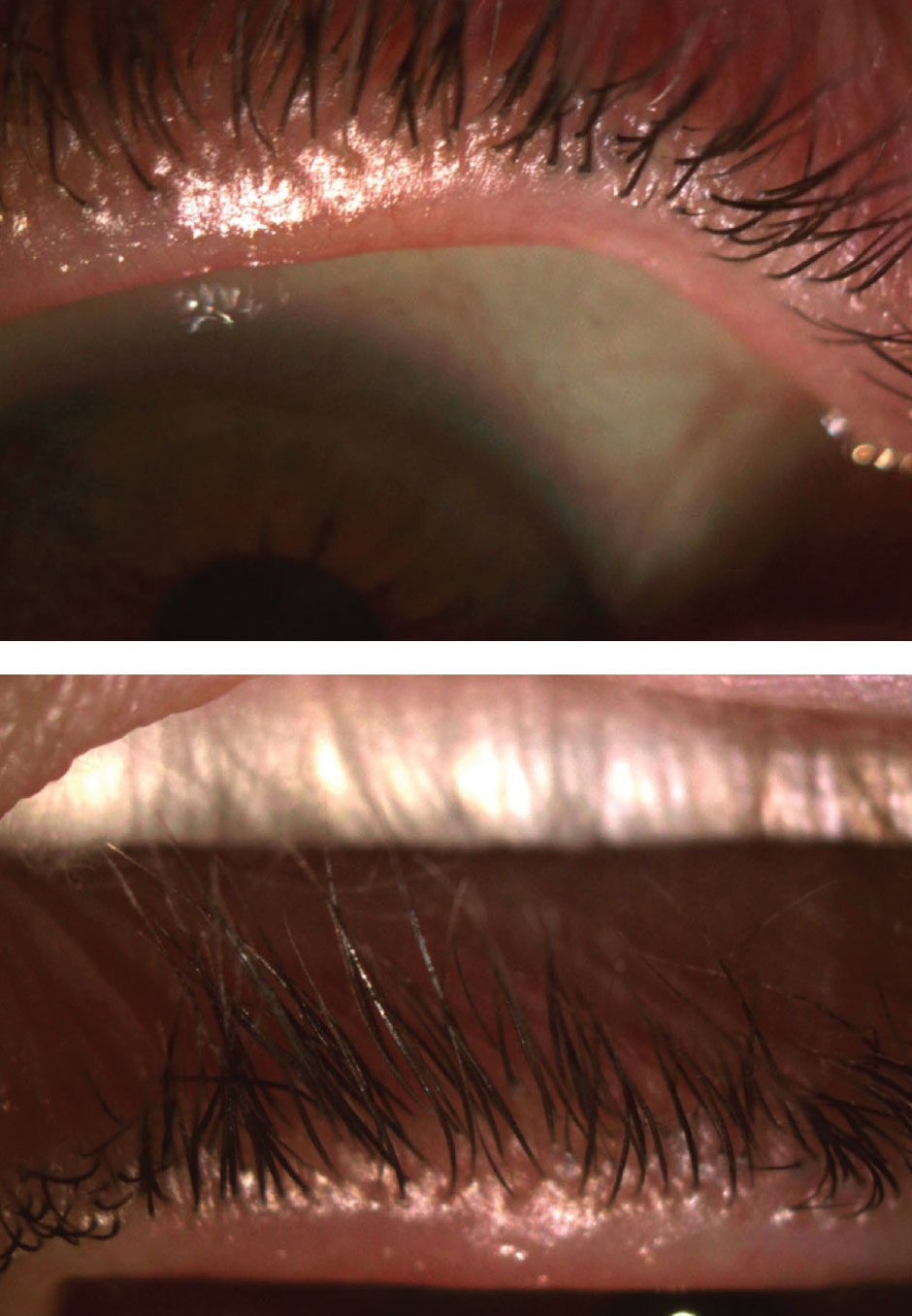 After discontinuing contact lens wear for a week, the patient's lashes were still pouted (OD on the top).