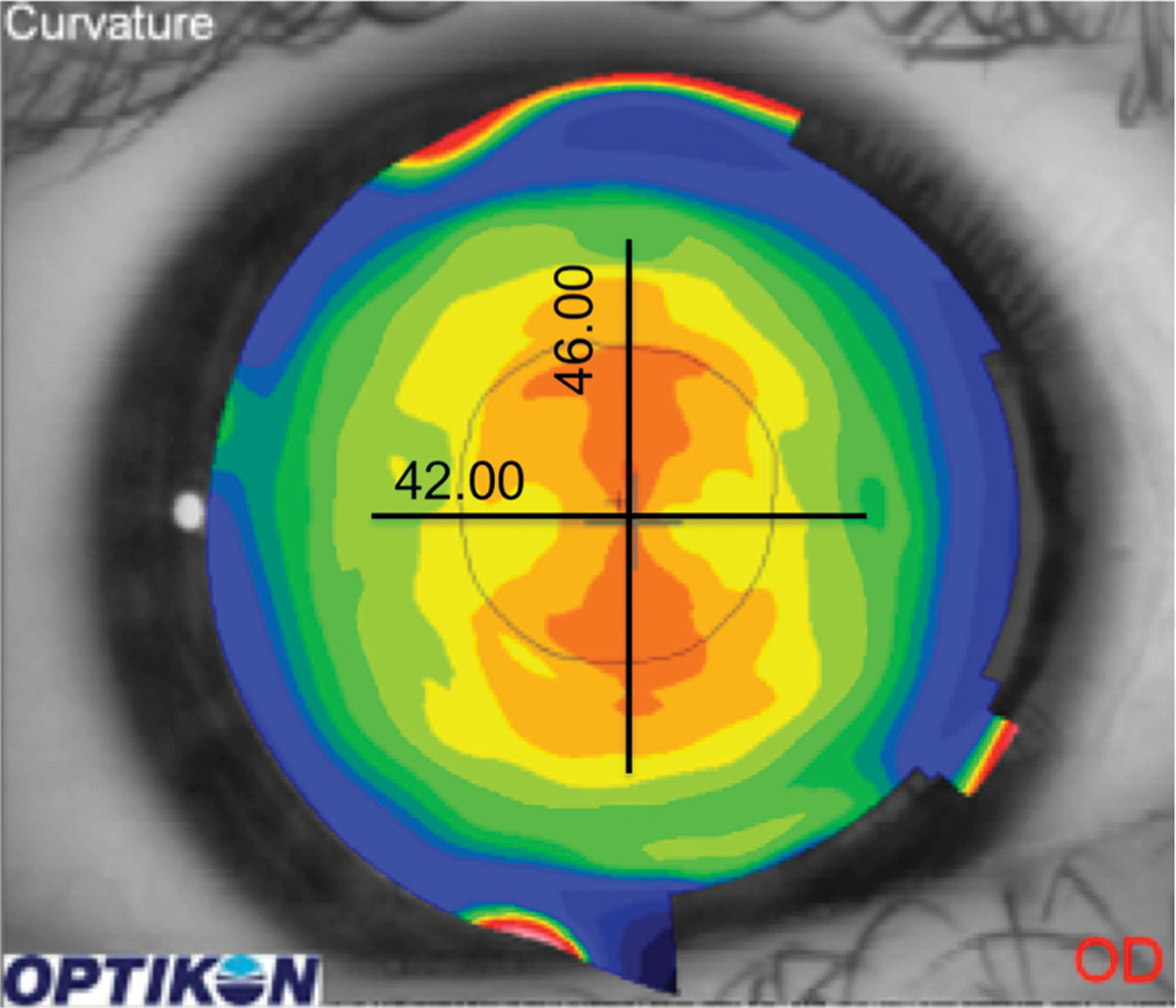 Centrally located astigmatism can often be fit with a spherical GP lens.