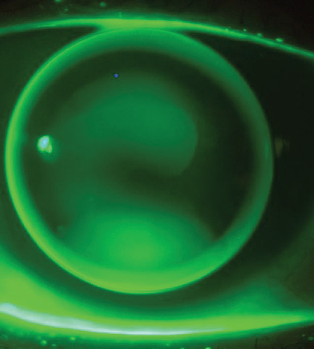 "Fig. 1. The ""three-point touch"" pattern of a small (9.2mm) OAD lens for a patient with keratoconus."