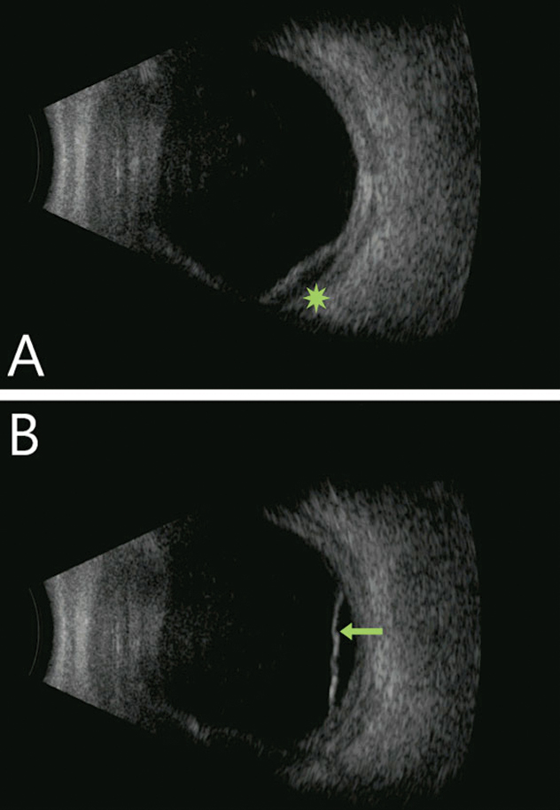 Fig. 2. Diffuse choroidal thickening with focal choroidal detachment (green star) and with shallow serous retinal detachment (green arrow). Notably, the vitreous cavity is quiet in both images.