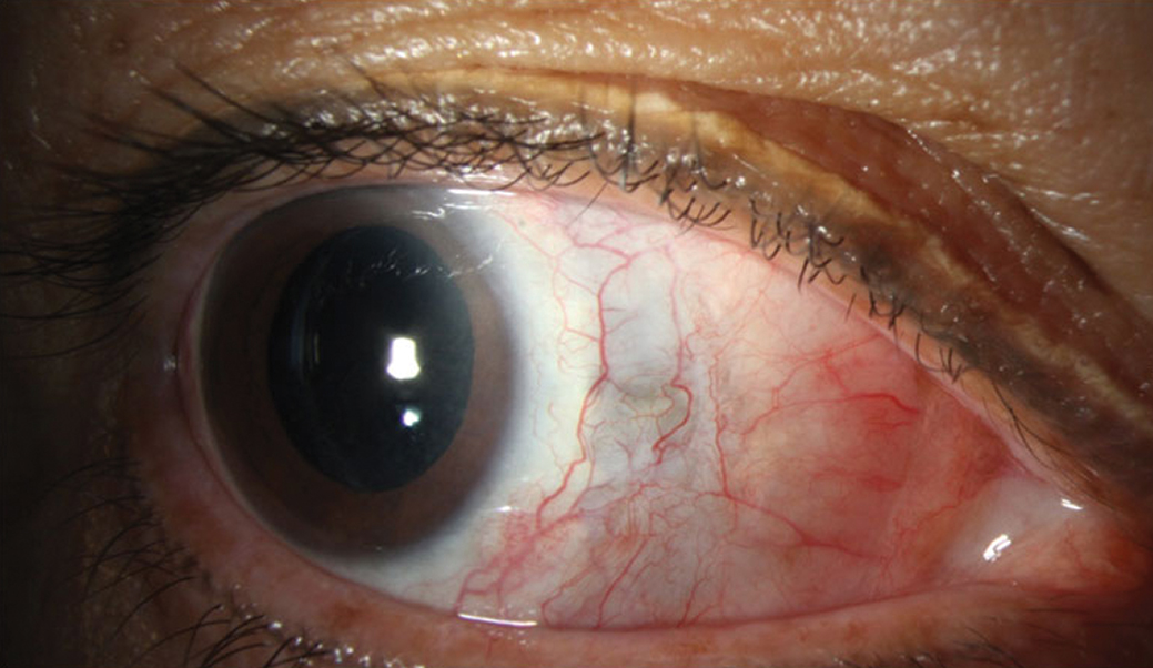 Fig. 3. Improvement in injection and resolution of abscess. Residual scleral thinning is evident by the bluish hue.