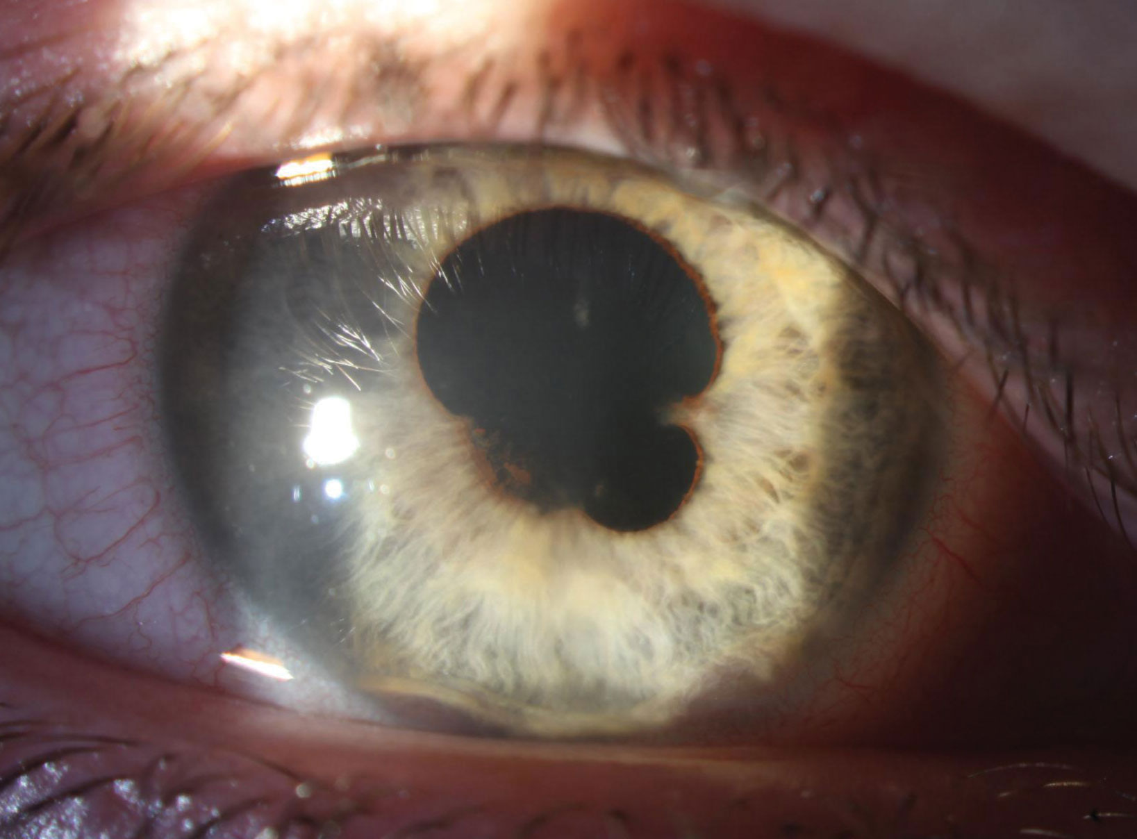 Broad and extensive posterior synechia are present in the right eye at presentation. Substantial anterior synechia are also apparent at 5 o'clock and 7 o'clock.