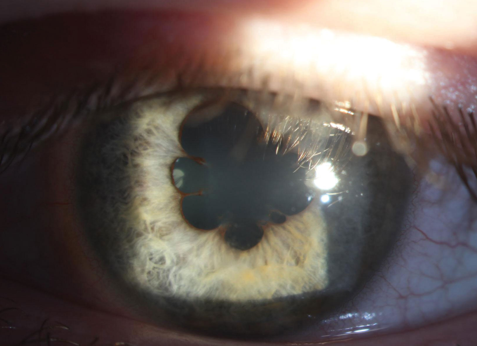 In the left eye, 360° of marked posterior synechiae can be seen at presentation.