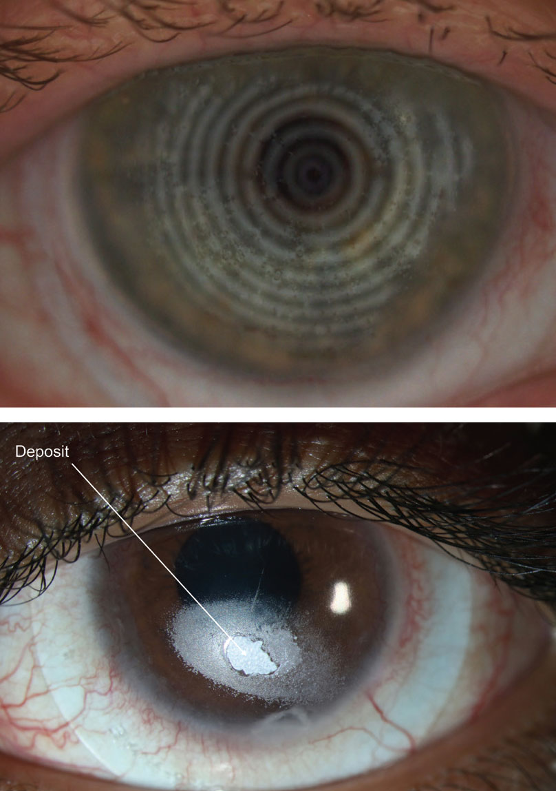 Figs. 2 and 3. Deposits (distorted spots) might appear on a compromised scleral lens surface. Photos: Maria Walker, OD, and Gloria B. Chiu, OD.