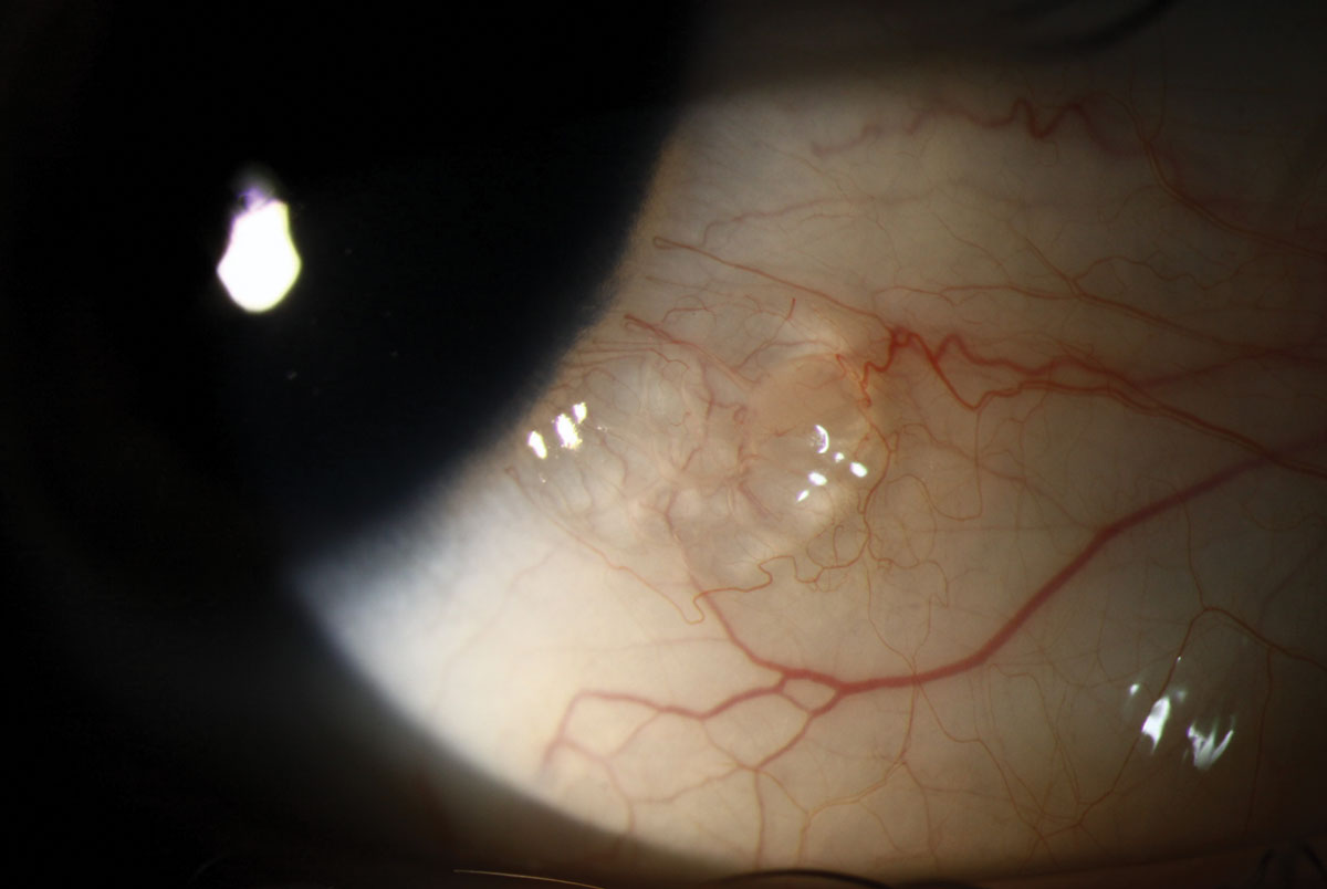 Conjunctival lymphangiectasis can present as a bubble on the bulbar conjunctiva that often has a cystic appearance and may be clear or yellow.