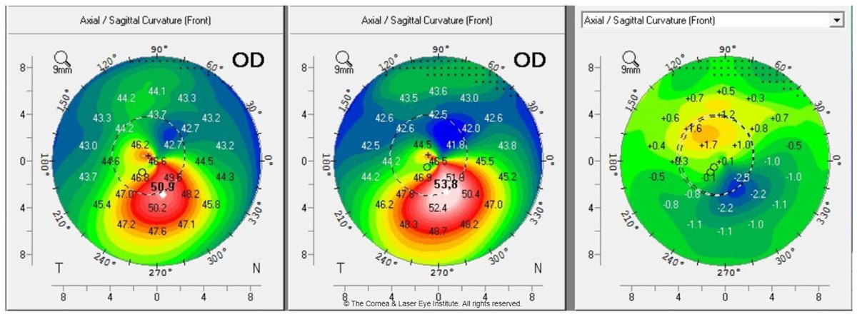 Fig. 1a. These axial curvature topography maps display differences (right) in pre-op curvature (center) to one-year post-op curvature (left). This cornea shows flattening of the corneal apex, consistent with the dioptric change reported in the literature one year after standard CXL.