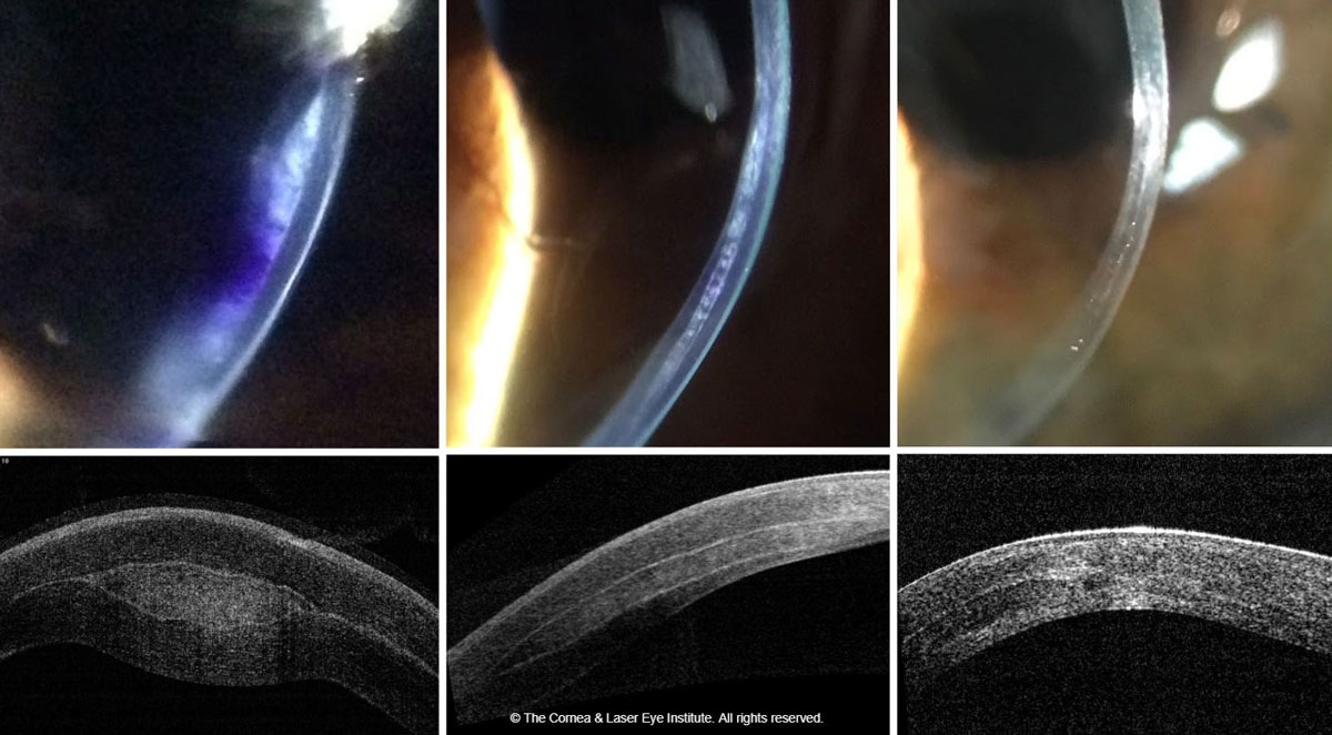 Fig. 4. These images show the optic section and corneal OCT of post-op allograft corneal tissue implantation for keratoconus, immediately post-op (left), one month post-op (middle) and 18 months post-op (right).