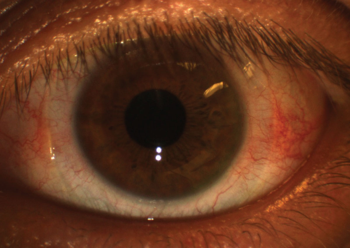 Fig. 9. Conjunctival redness (3 o'clock and 9 o'clock regions) after scleral lens removal might be due to a lens that is too tight in the periphery. Photo: Maria Walker, OD.